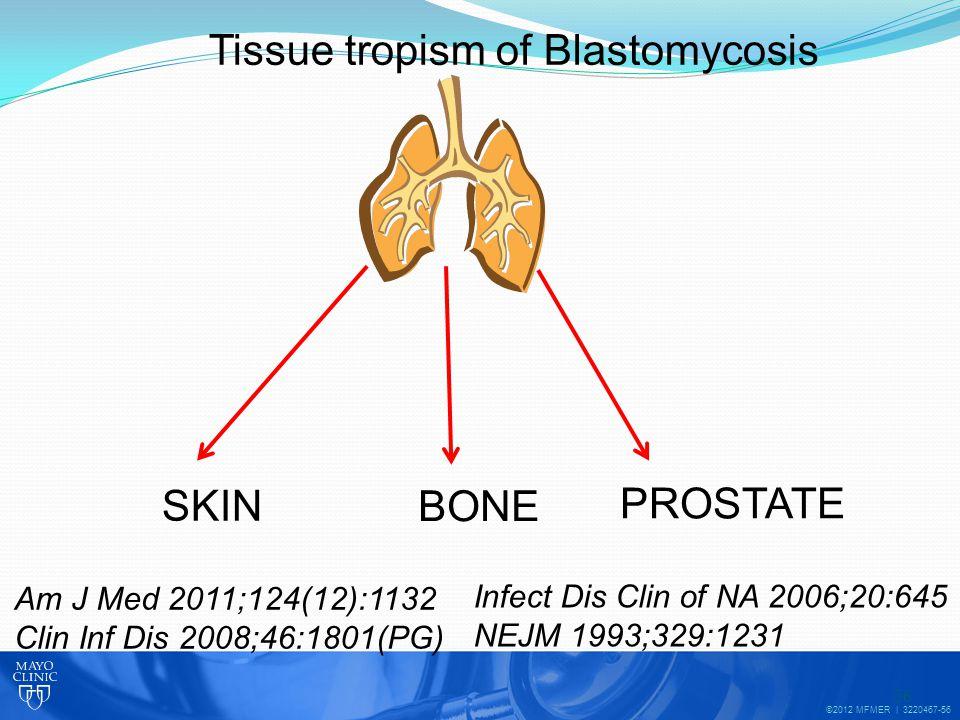 ©2012 MFMER | 3220467-56 56 SKIN BONE PROSTATE Tissue tropism of Blastomycosis Am J Med 2011;124(12):1132 Clin Inf Dis 2008;46:1801(PG) Infect Dis Clin of NA 2006;20:645 NEJM 1993;329:1231