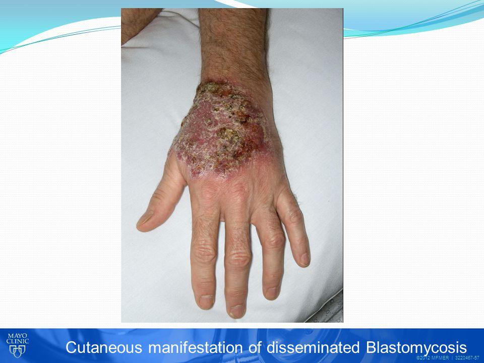 ©2012 MFMER | 3220467-57 Cutaneous manifestation of disseminated Blastomycosis