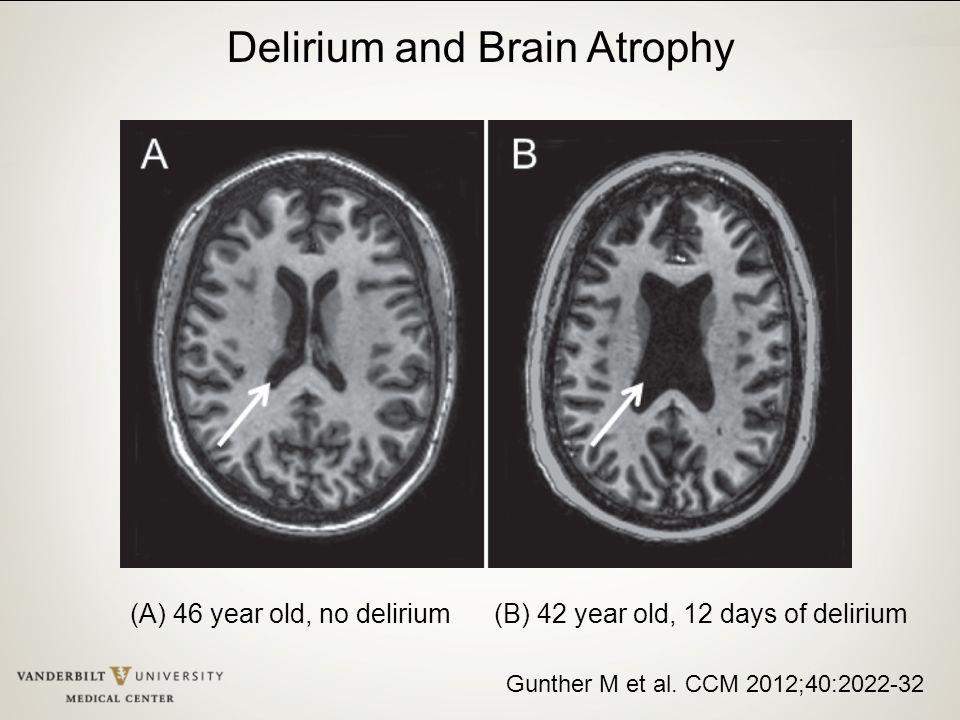 Gunther M et al. CCM 2012;40:2022-32 (A) 46 year old, no delirium (B) 42 year old, 12 days of delirium Delirium and Brain Atrophy