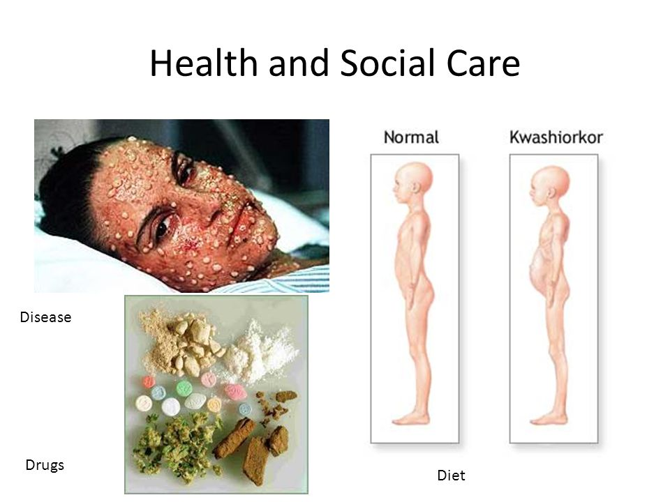Health and Social Care Disease Drugs Diet