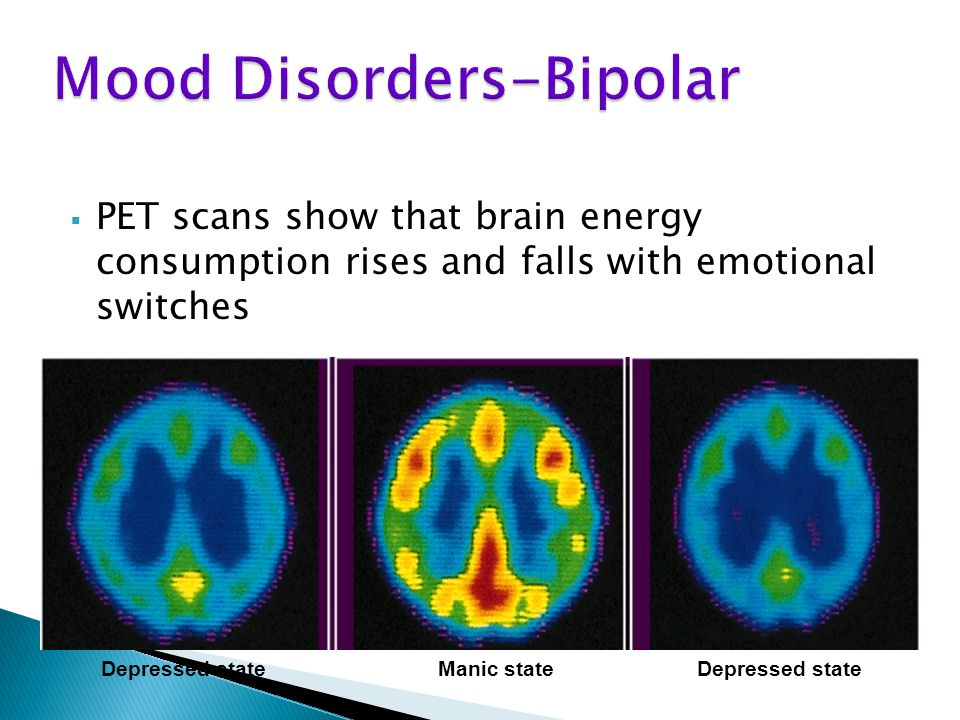  PET scans show that brain energy consumption rises and falls with emotional switches Depressed stateManic stateDepressed state
