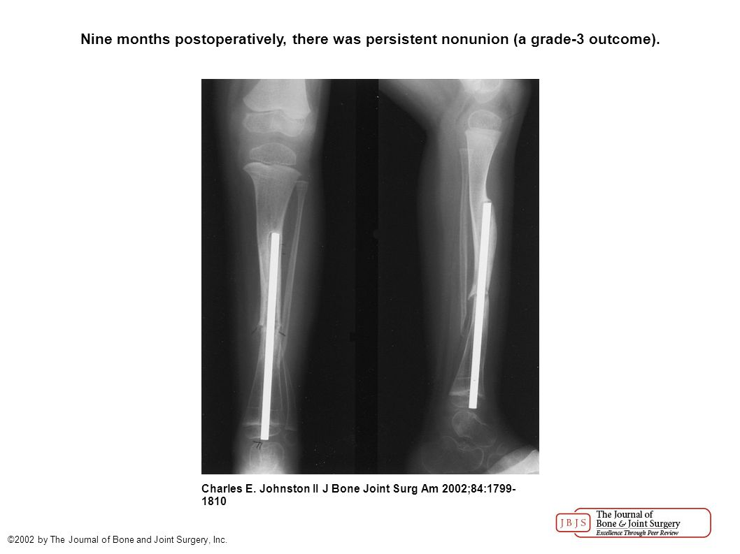 Four months following revision, the fibular osteotomy site had not united and the tibial pseudarthrosis appeared to be more atrophic.