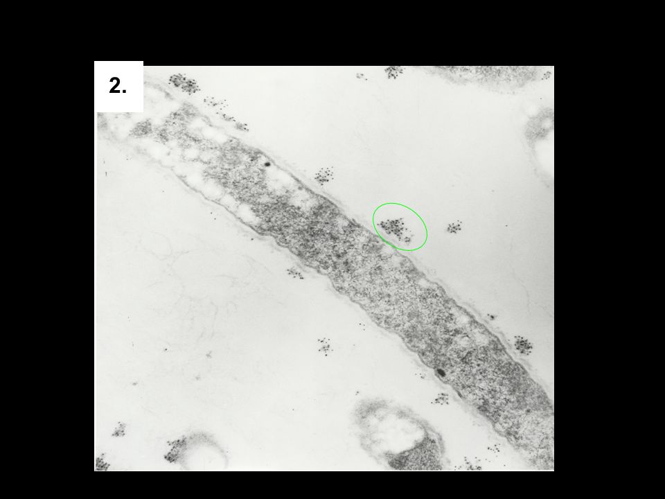 2. Immunogold TEM of F. nucleatum after rhBD-2 incubation