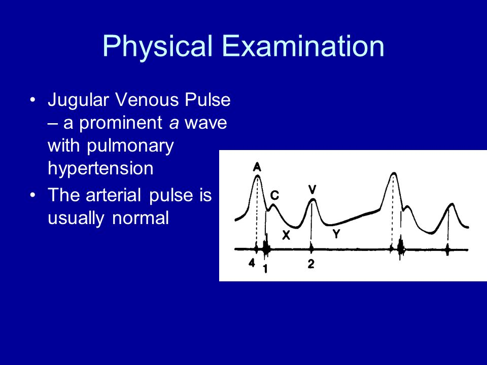 Physical Examination Jugular Venous Pulse – a prominent a wave with pulmonary hypertension The arterial pulse is usually normal