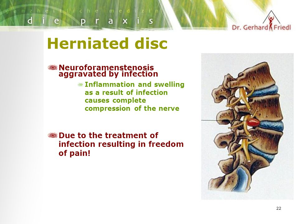 22 Herniated disc Neuroforamenstenosis aggravated by infection Inflammation and swelling as a result of infection causes complete compression of the nerve Due to the treatment of infection resulting in freedom of pain!