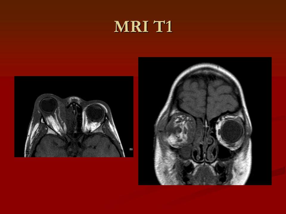 MRI T1