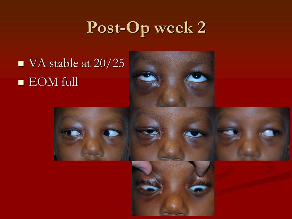 Post-Op week 2 VA stable at 20/25 VA stable at 20/25 EOM full EOM full