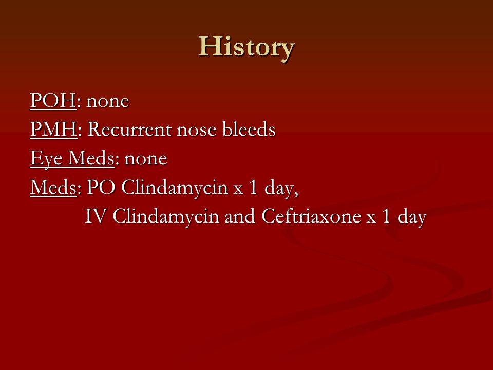 History POH: none PMH: Recurrent nose bleeds Eye Meds: none Meds: PO Clindamycin x 1 day, IV Clindamycin and Ceftriaxone x 1 day IV Clindamycin and Ce