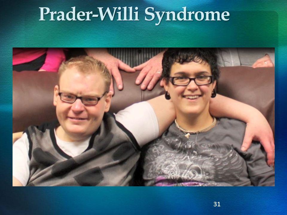 31 Prader-Willi Syndrome