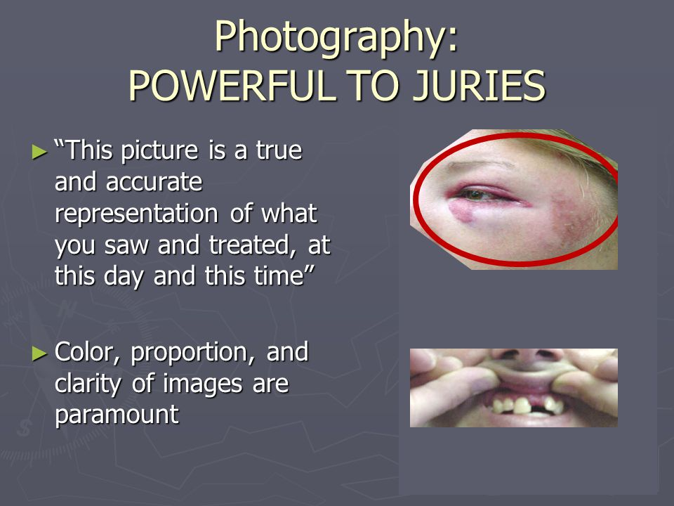 "Photography: POWERFUL TO JURIES ► ""This picture is a true and accurate representation of what you saw and treated, at this day and this time"" ► Color,"