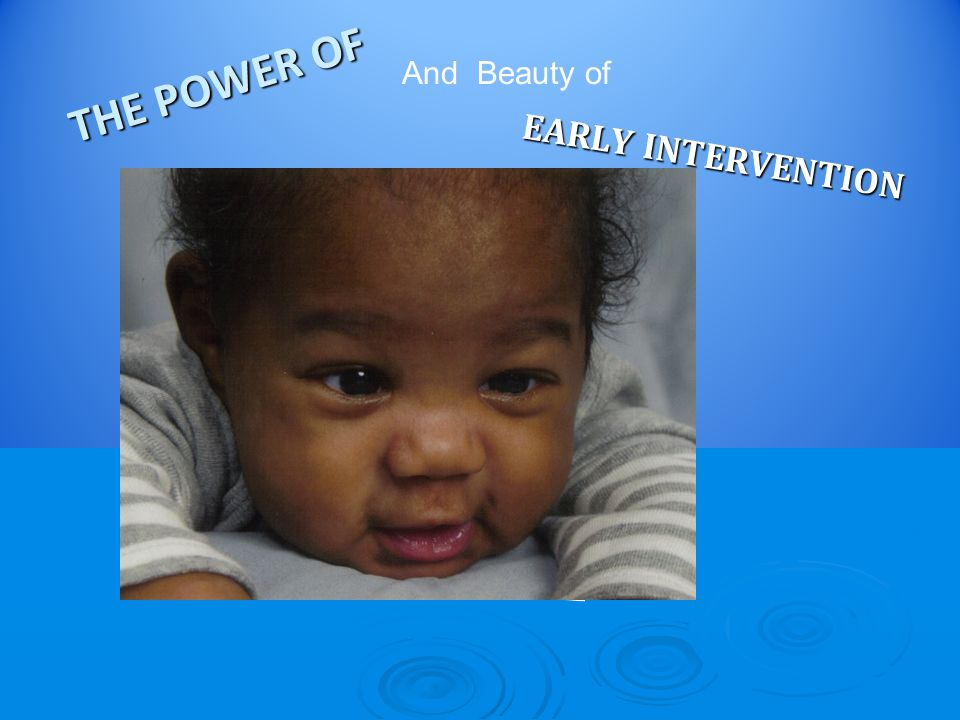 THE POWER OF EARLY INTERVENTION And Beauty of