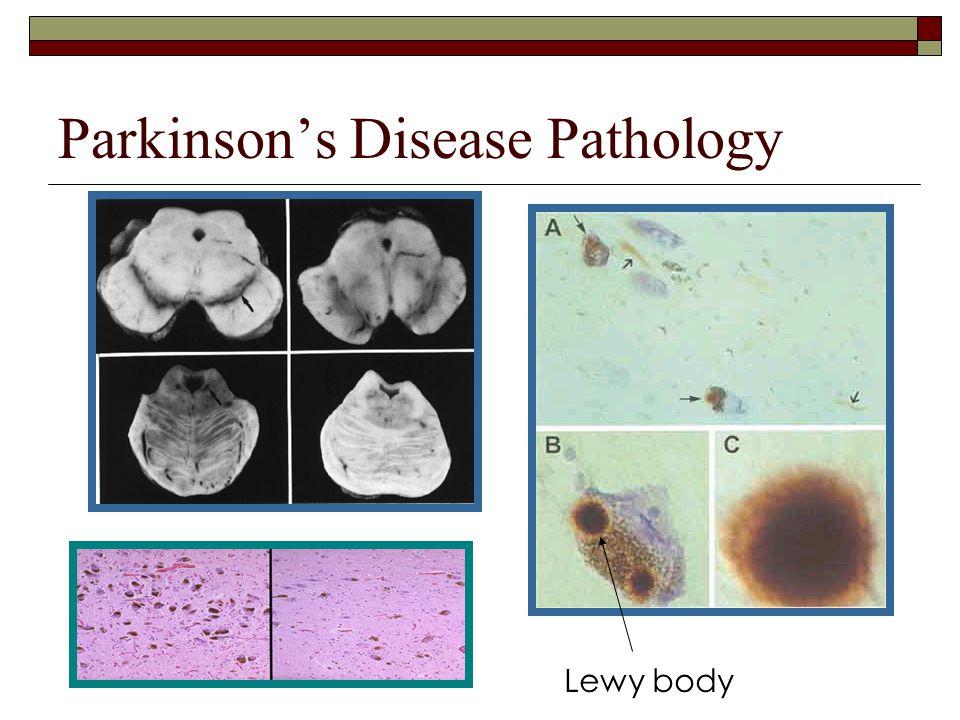 Parkinson's Disease Pathology Lewy body