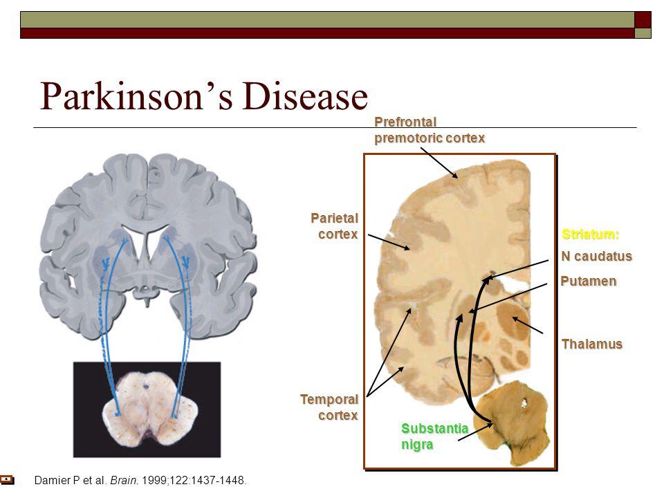 Parkinson's Disease N caudatus Putamen Thalamus Temporalcortex Parietalcortex Prefrontal premotoric cortex Striatum: Substantianigra Damier P et al.
