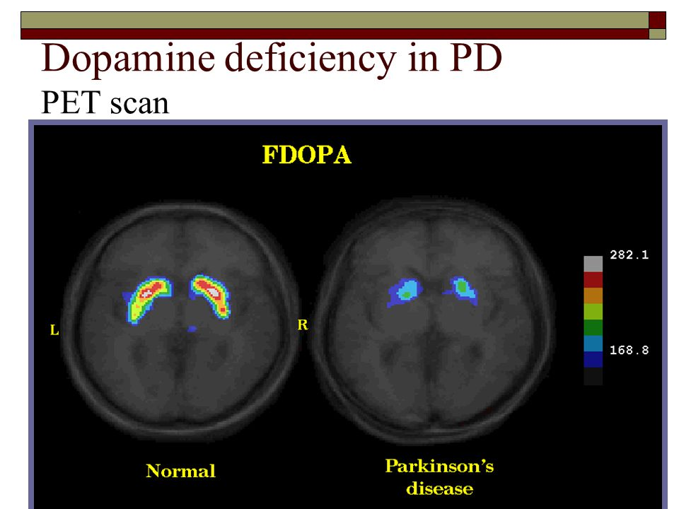 Dopamine deficiency in PD PET scan