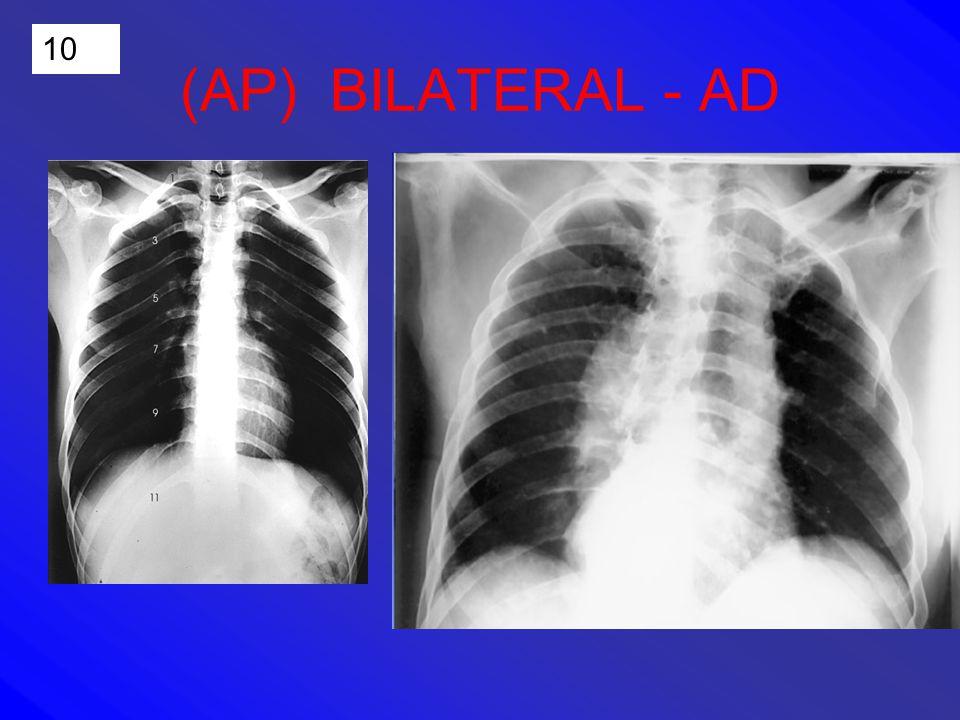 10 (AP) BILATERAL - AD