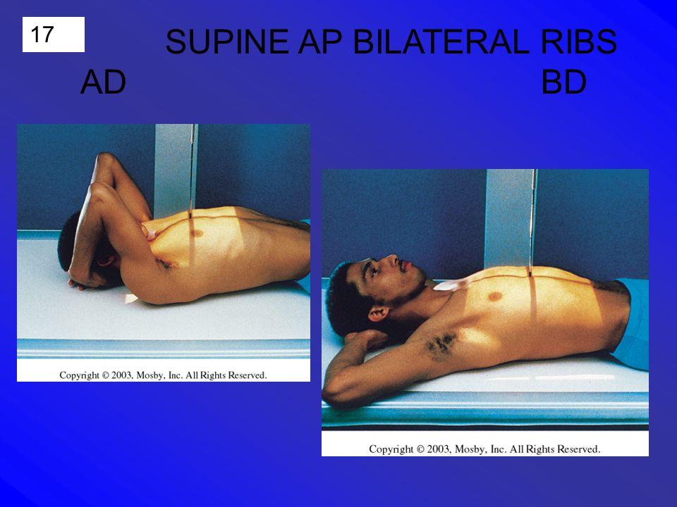 17 SUPINE AP BILATERAL RIBS AD BD