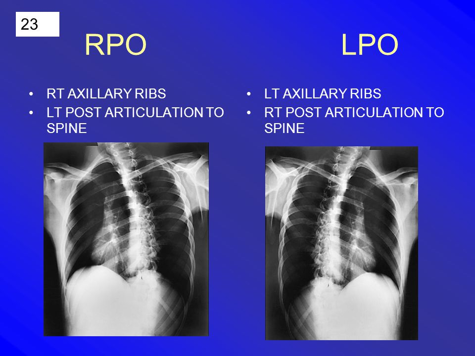 23 RPO LPO RT AXILLARY RIBS LT POST ARTICULATION TO SPINE LT AXILLARY RIBS RT POST ARTICULATION TO SPINE