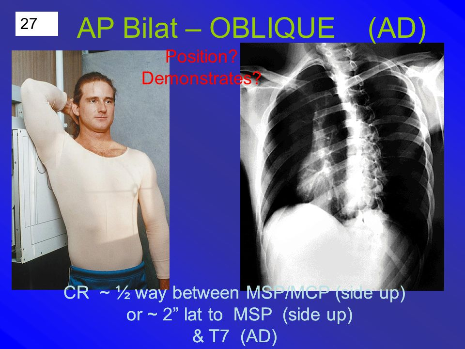 27 AP Bilat – OBLIQUE (AD) Position. Demonstrates.