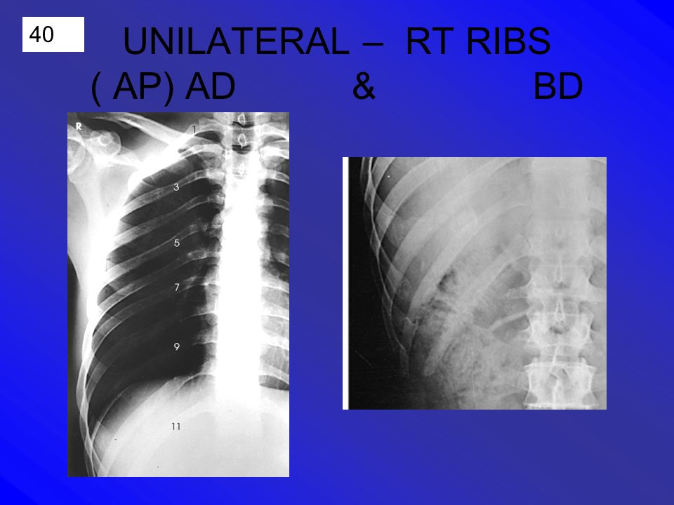 40 UNILATERAL – RT RIBS ( AP) AD & BD