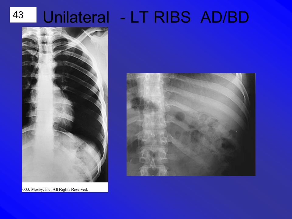 43 Unilateral - LT RIBS AD/BD