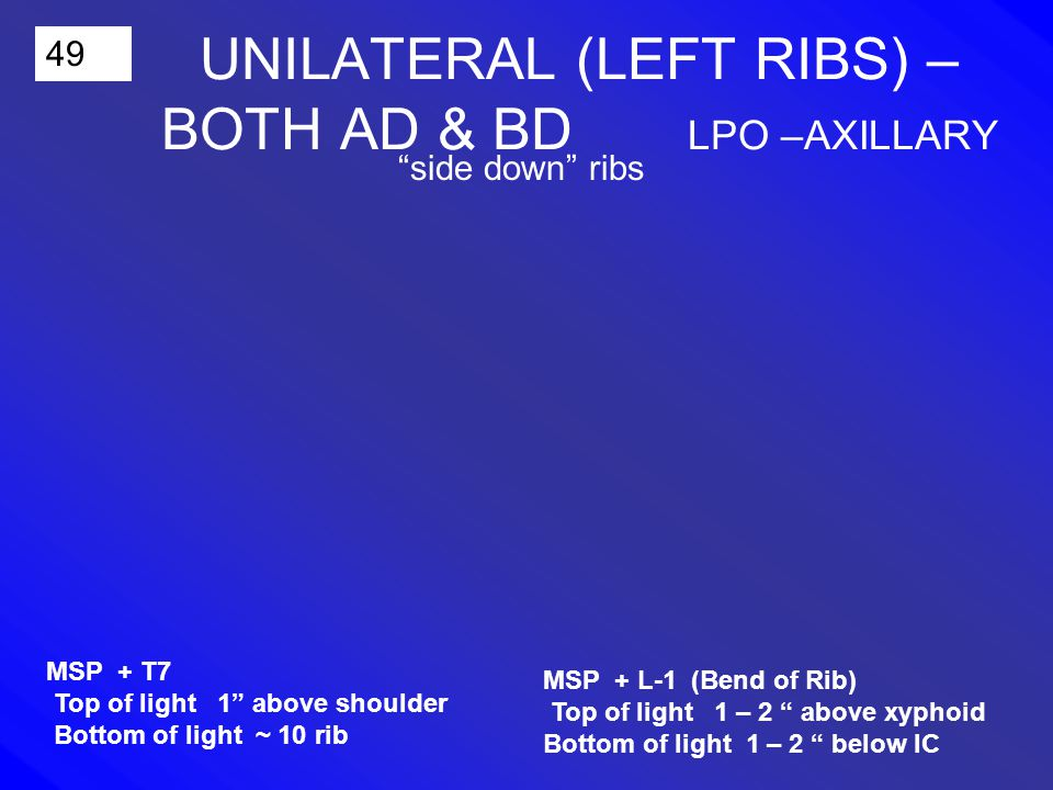 49 UNILATERAL (LEFT RIBS) – BOTH AD & BD LPO –AXILLARY side down ribs MSP + L-1 (Bend of Rib) Top of light 1 – 2 above xyphoid Bottom of light 1 – 2 below IC MSP + T7 Top of light 1 above shoulder Bottom of light ~ 10 rib