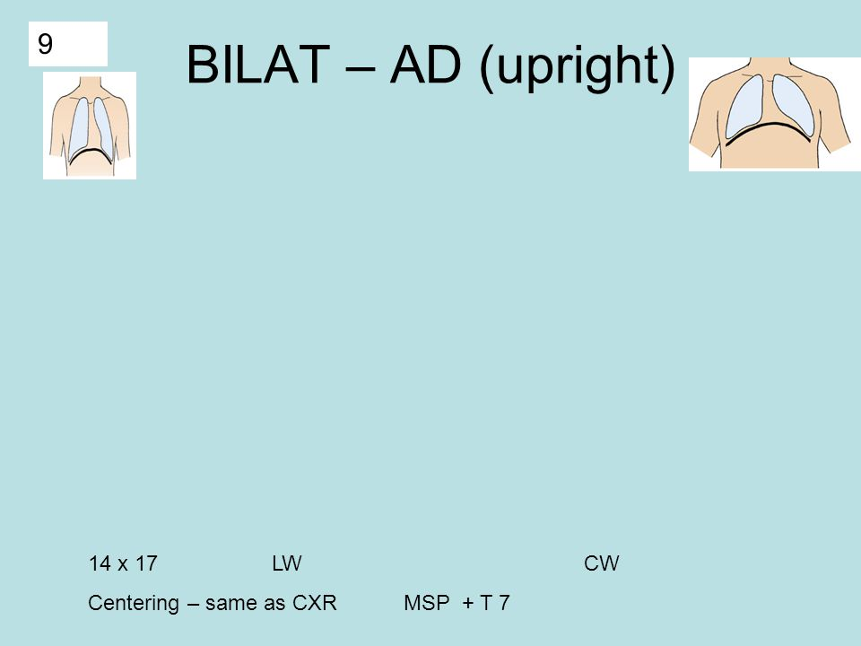 9 BILAT – AD (upright) 14 x 17 LW CW Centering – same as CXR MSP + T 7