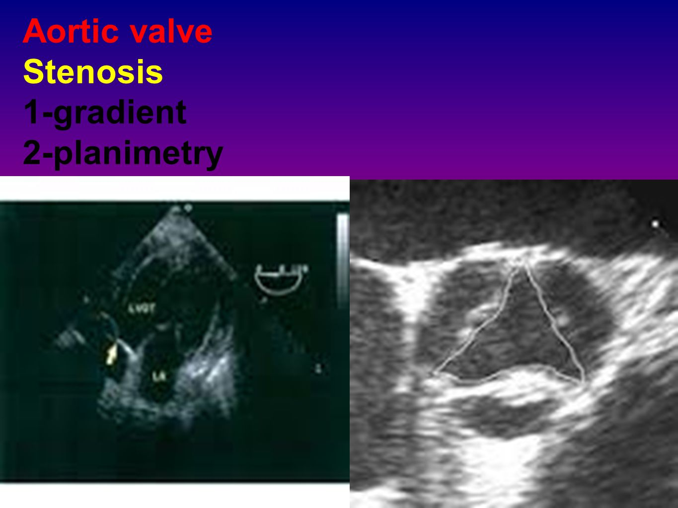 Aortic valve Stenosis 1-gradient 2-planimetry
