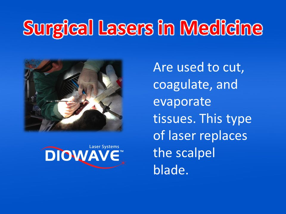 The TMA Laser is the only laser available on the market that was designed to accomplish both surgical and therapeutic procedures.
