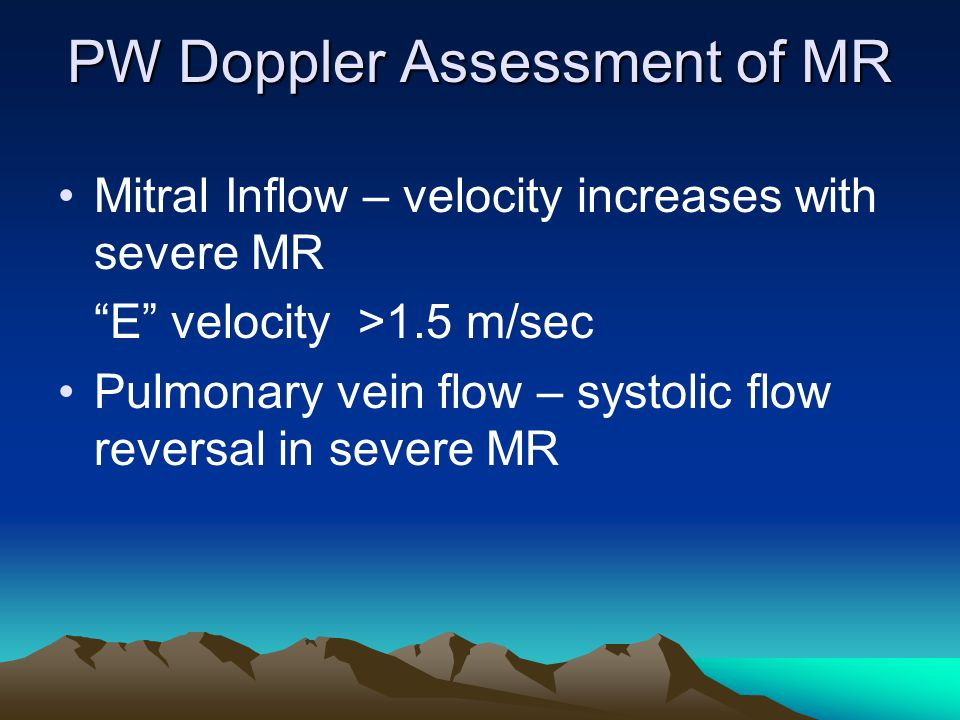 "PW Doppler Assessment of MR Mitral Inflow – velocity increases with severe MR ""E"" velocity >1.5 m/sec Pulmonary vein flow – systolic flow reversal in"