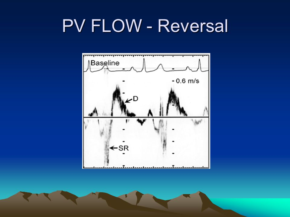 PV FLOW - Reversal