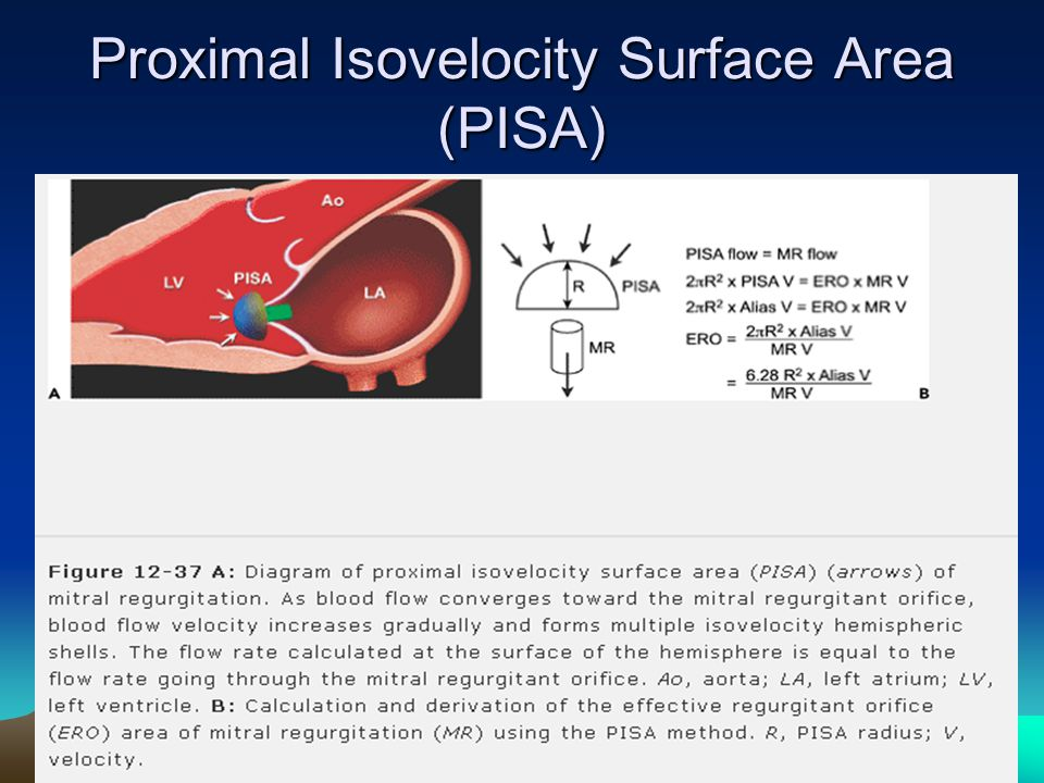 Proximal Isovelocity Surface Area (PISA)