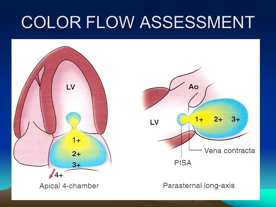 COLOR FLOW ASSESSMENT