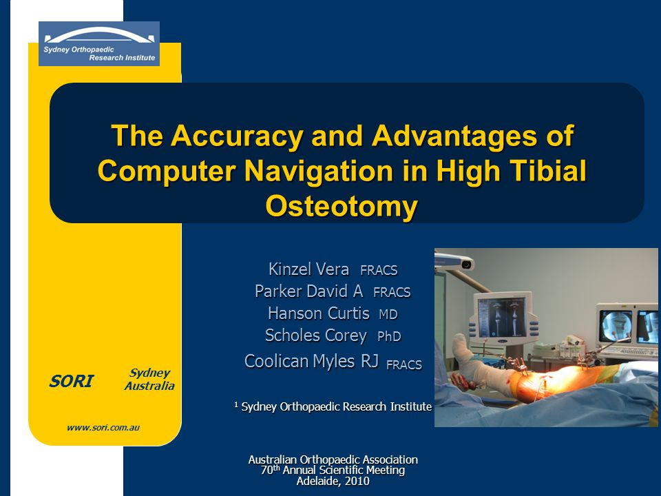 www.sori.com.au Sydney Australia SORI The Accuracy and Advantages of Computer Navigation in High Tibial Osteotomy Kinzel Vera FRACS Parker David A FRA