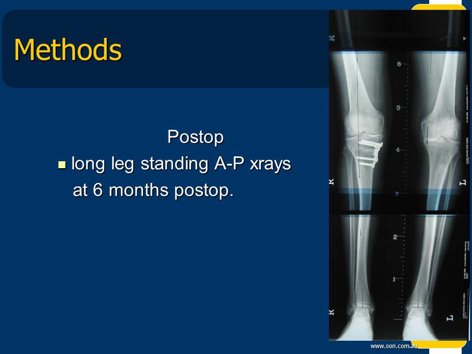 www.sori.com.au Methods Postop Postop long leg standing A-P xrays long leg standing A-P xrays at 6 months postop.