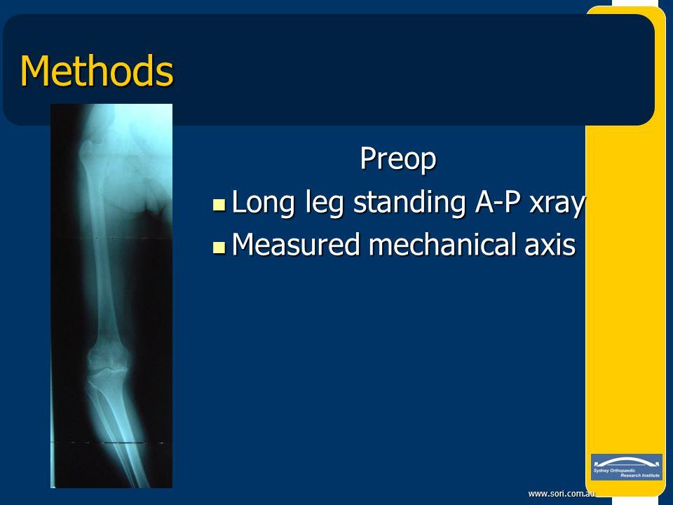 www.sori.com.au Methods Preop Preop Long leg standing A-P xray Long leg standing A-P xray Measured mechanical axis Measured mechanical axis