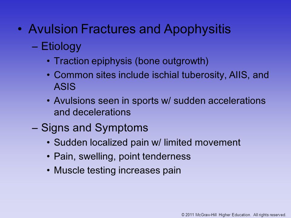 Avulsion Fractures and Apophysitis –Etiology Traction epiphysis (bone outgrowth) Common sites include ischial tuberosity, AIIS, and ASIS Avulsions see