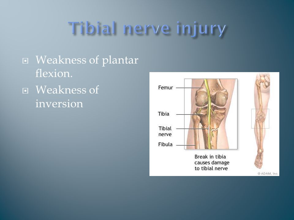  Weakness of plantar flexion.  Weakness of inversion