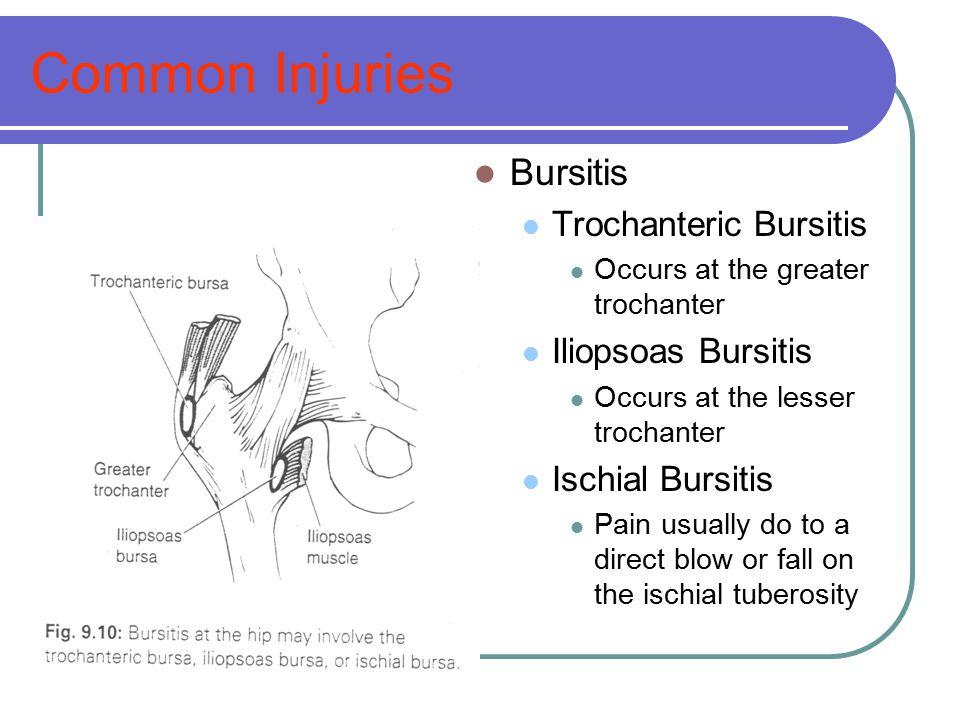 Common Injuries Bursitis Trochanteric Bursitis Occurs at the greater trochanter Iliopsoas Bursitis Occurs at the lesser trochanter Ischial Bursitis Pa