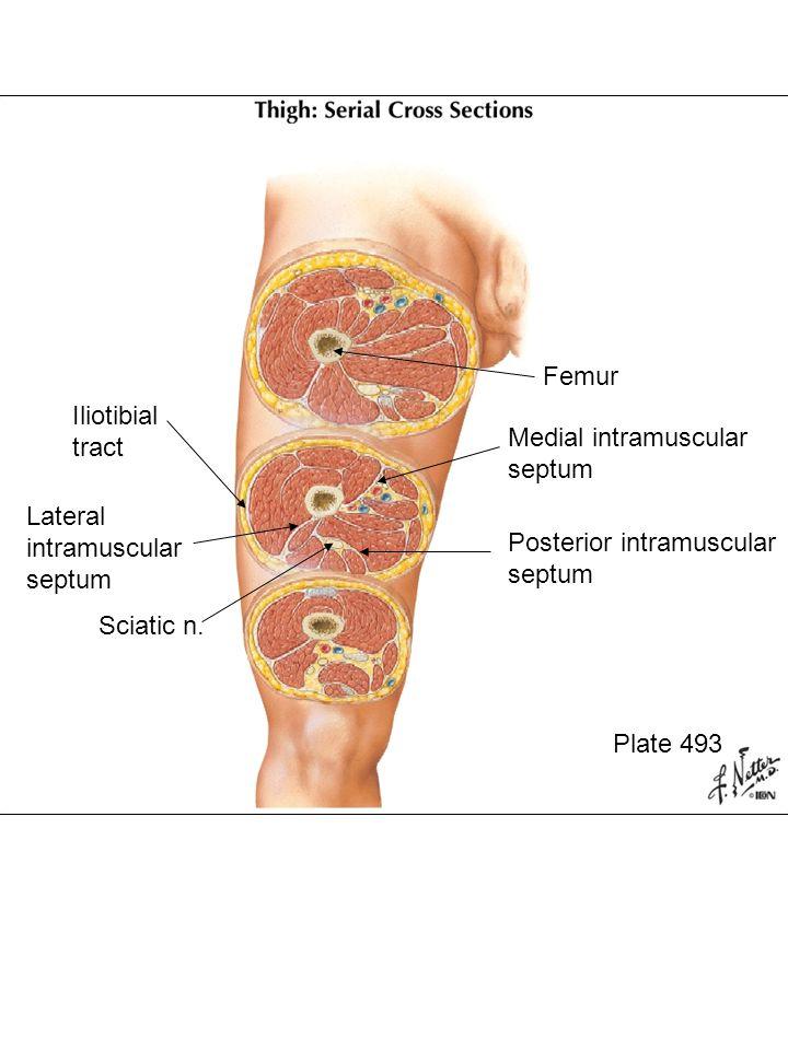Femur Lateral intramuscular septum Sciatic nerve Fascia lata Posterior intramuscular septum Great saphenous vein Femoral artery Medial intramuscular septum