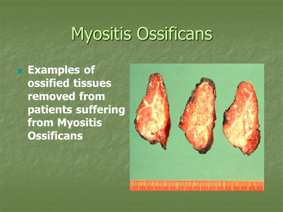 Myositis Ossificans Examples of ossified tissues removed from patients suffering from Myositis Ossificans