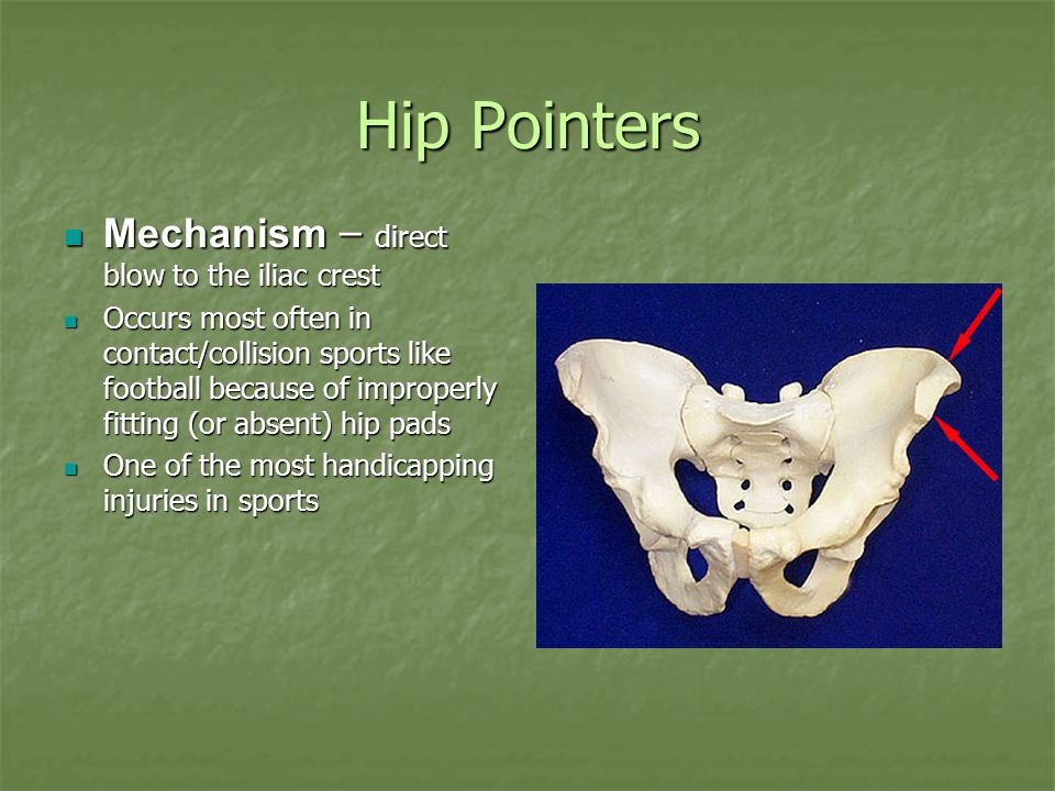 Hip Pointers Mechanism – direct blow to the iliac crest Mechanism – direct blow to the iliac crest Occurs most often in contact/collision sports like
