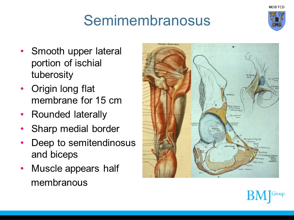 Semimembranosus Smooth upper lateral portion of ischial tuberosity Origin long flat membrane for 15 cm Rounded laterally Sharp medial border Deep to s