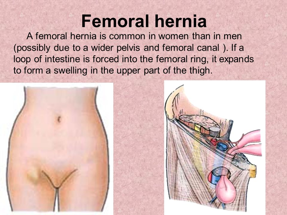 Femoral hernia A femoral hernia is common in women than in men (possibly due to a wider pelvis and femoral canal ). If a loop of intestine is forced i
