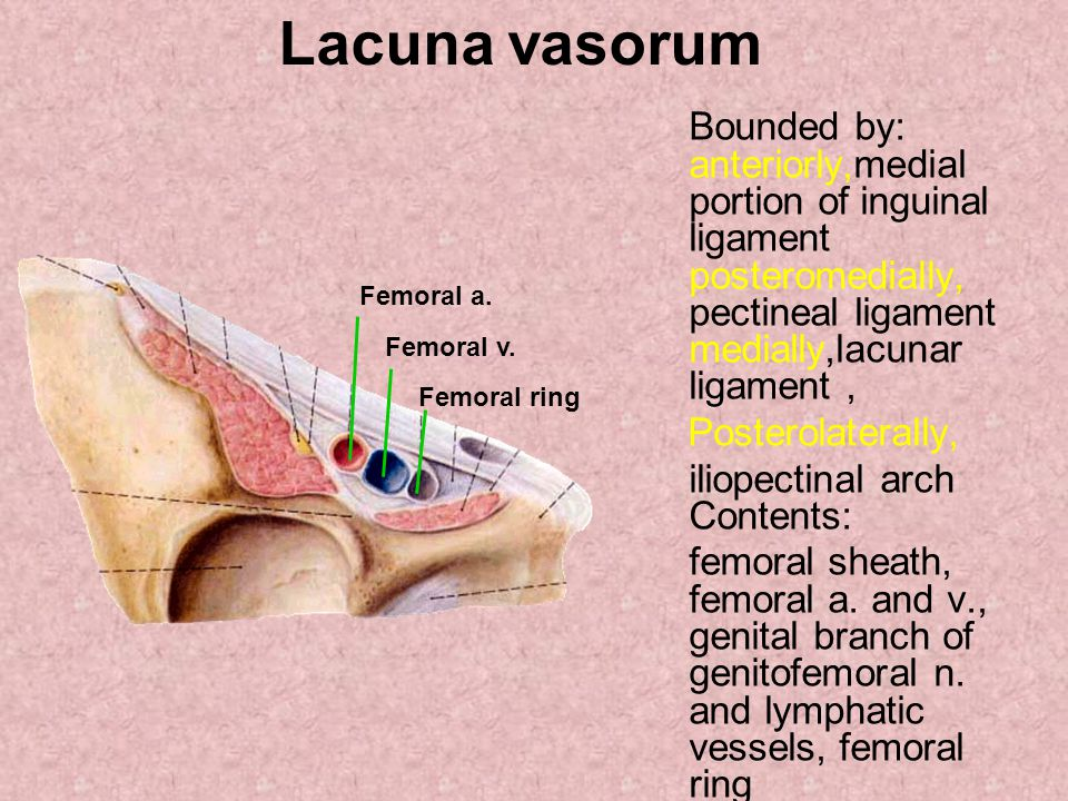 Lacuna vasorum Bounded by: anteriorly,medial portion of inguinal ligament posteromedially, pectineal ligament medially,lacunar ligament, Posterolaterally, iliopectinal arch Contents: femoral sheath, femoral a.