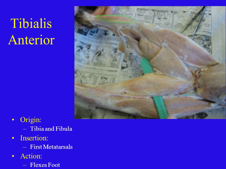 Tibialis Anterior Origin: –Tibia and Fibula Insertion: –First Metatarsals Action: –Flexes Foot