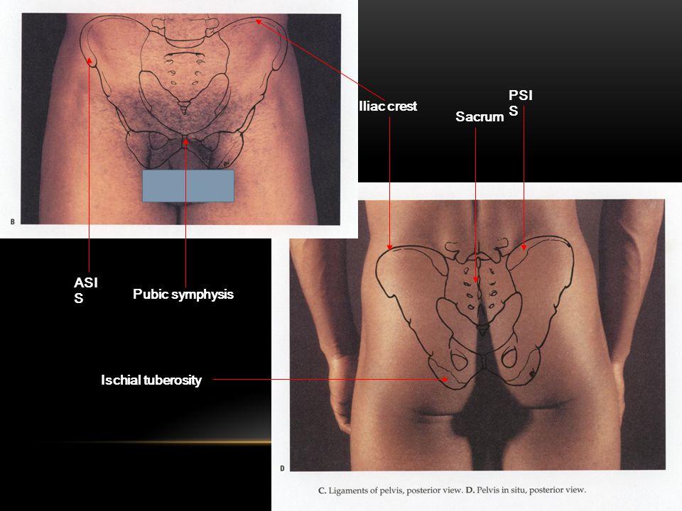 PSI S ASI S Iliac crest Pubic symphysis Ischial tuberosity Sacrum