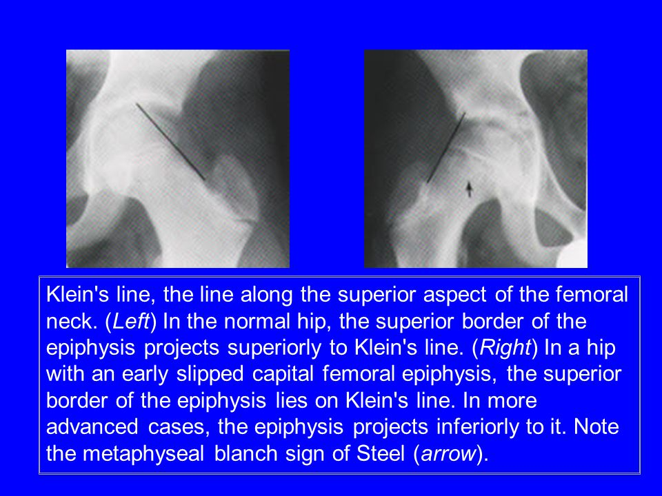 Klein s line, the line along the superior aspect of the femoral neck.