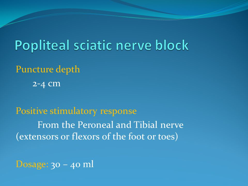 Puncture depth 2-4 cm Positive stimulatory response From the Peroneal and Tibial nerve (extensors or flexors of the foot or toes) Dosage: 30 – 40 ml