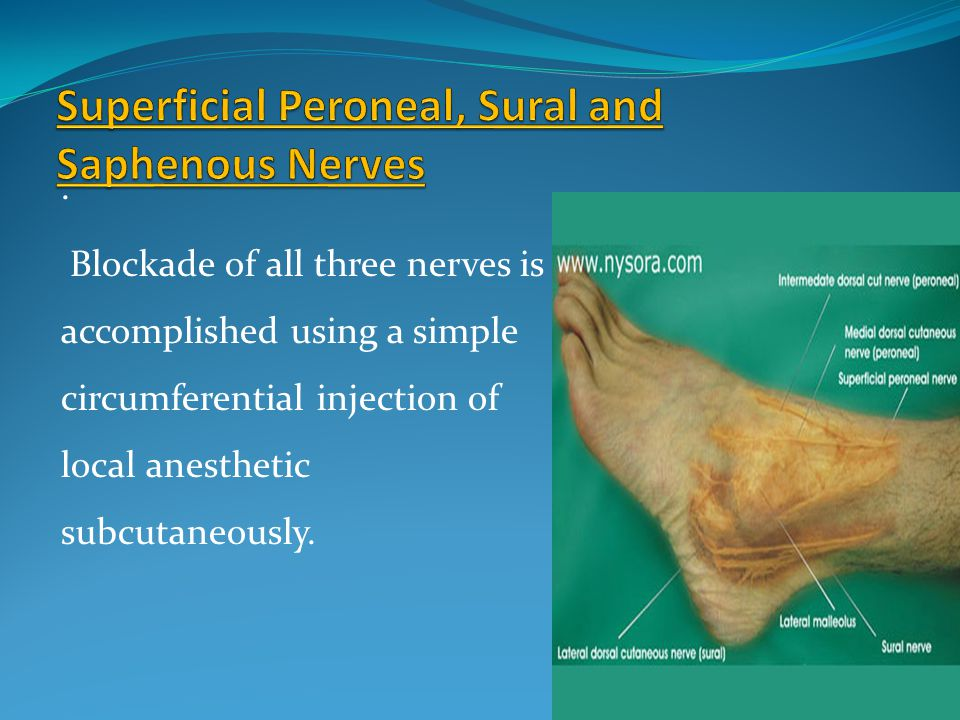 . Blockade of all three nerves is accomplished using a simple circumferential injection of local anesthetic subcutaneously.