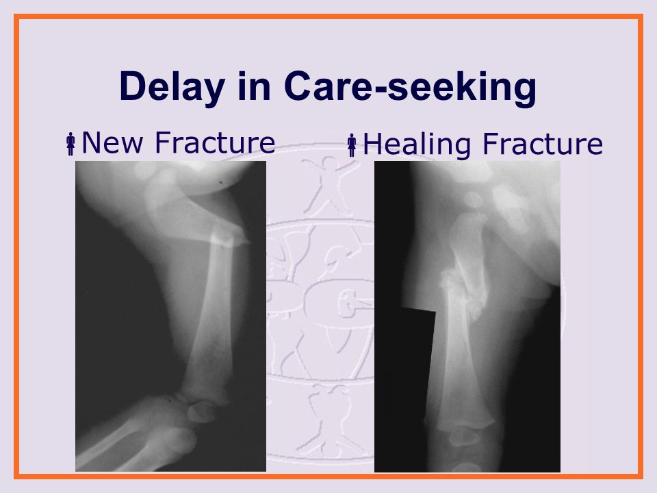 Delay in Care-seeking  New Fracture  Healing Fracture